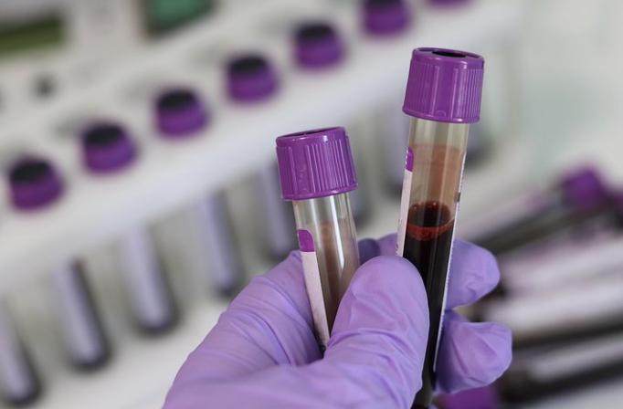 亚盛医药抗耐药CML新药HQP1351获美国FDA临床试验许可,将直接进入Ib期临床研究